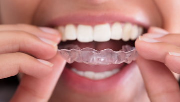 What Is Invisalign 1