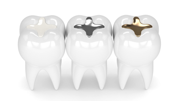 Who Is A Candidate For Dental Fillings