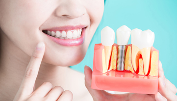 Who Is A Candidate For Dental Implants
