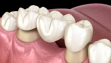 Why Are Dental Bridges Needed
