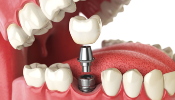 During The Procedure For Dental Implants