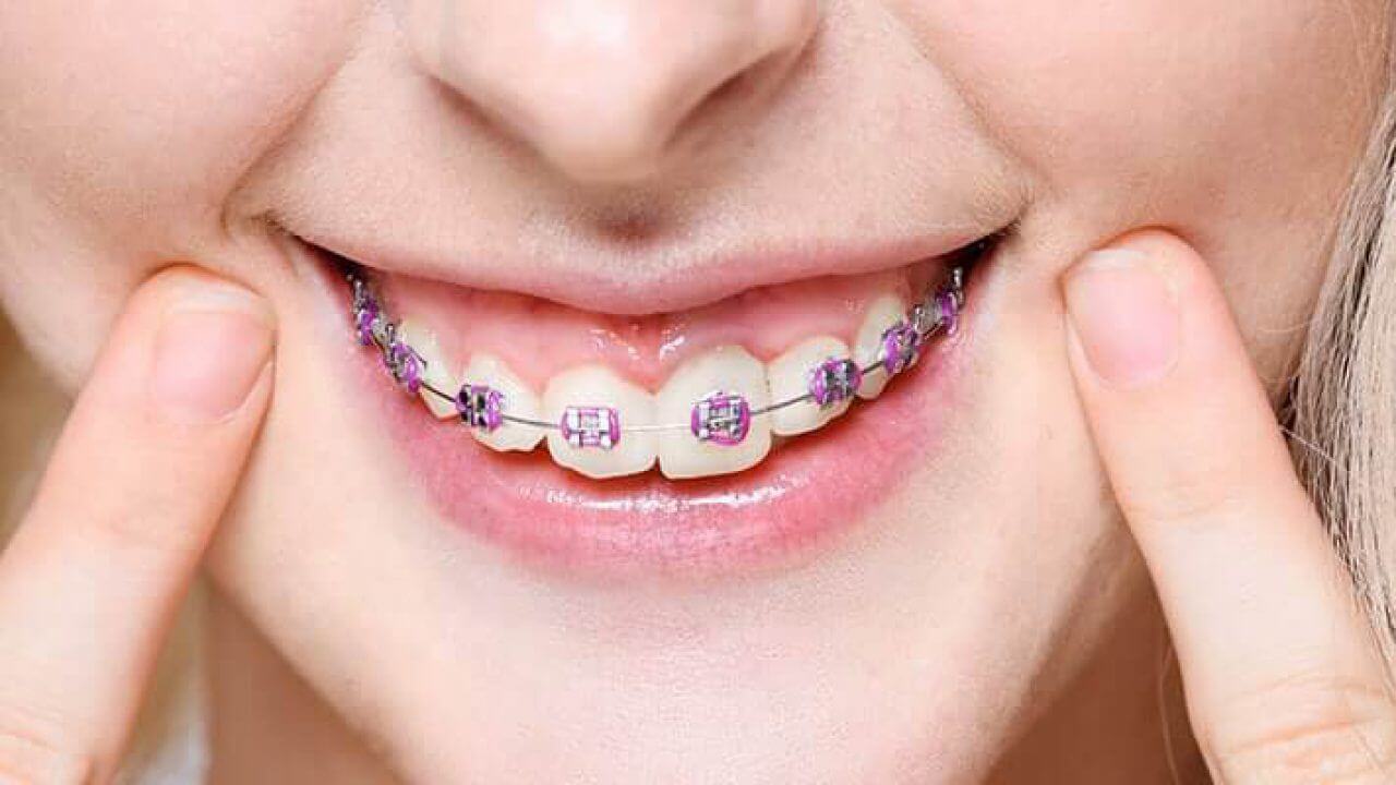 Differences Between Ceramic And Sapphire Brackets