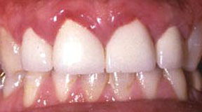 Anterior Crowns Before 4.jpg