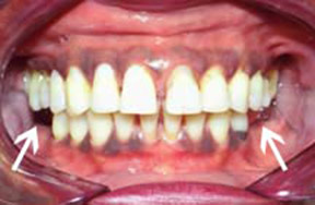 Denture 01 Before.jpg