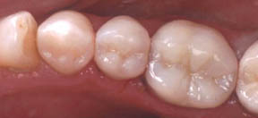 Fillings 05 After.jpg