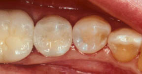 Fillings 06 After.jpg