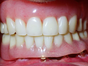 Implant 03 After.jpg