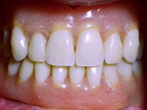 Implant 04 After.jpg