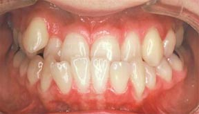 Ortho 01 Before.jpg
