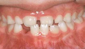 Ortho 04 Before.jpg