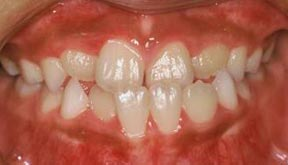 Ortho 05 Before.jpg