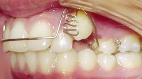 Ortho 06 Before.jpg