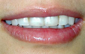 Veneers 02 Before.jpg