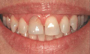 Veneers 03 Before.jpg