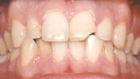 Veneers 04 Before.jpg