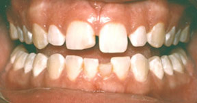 Veneers 07 Before.jpg