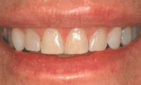 Veneers 08 Before.jpg