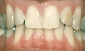 Veneers 09 Before.jpg