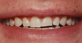 Veneers 10 Before.jpg