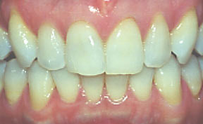 Veneers 11 Before.jpg