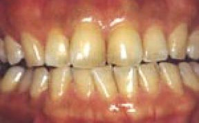 Whitening 01 Before.jpg