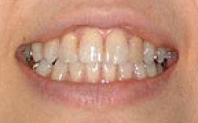 Whitening 02 Before.jpg