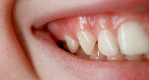 Why Do Teeth Experience Gum Infections?